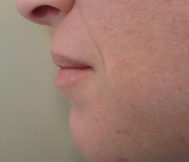 lips prfl bfre_0