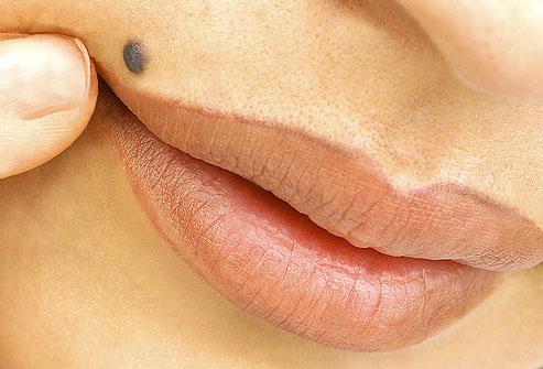 When is a skin lesion dangerous?