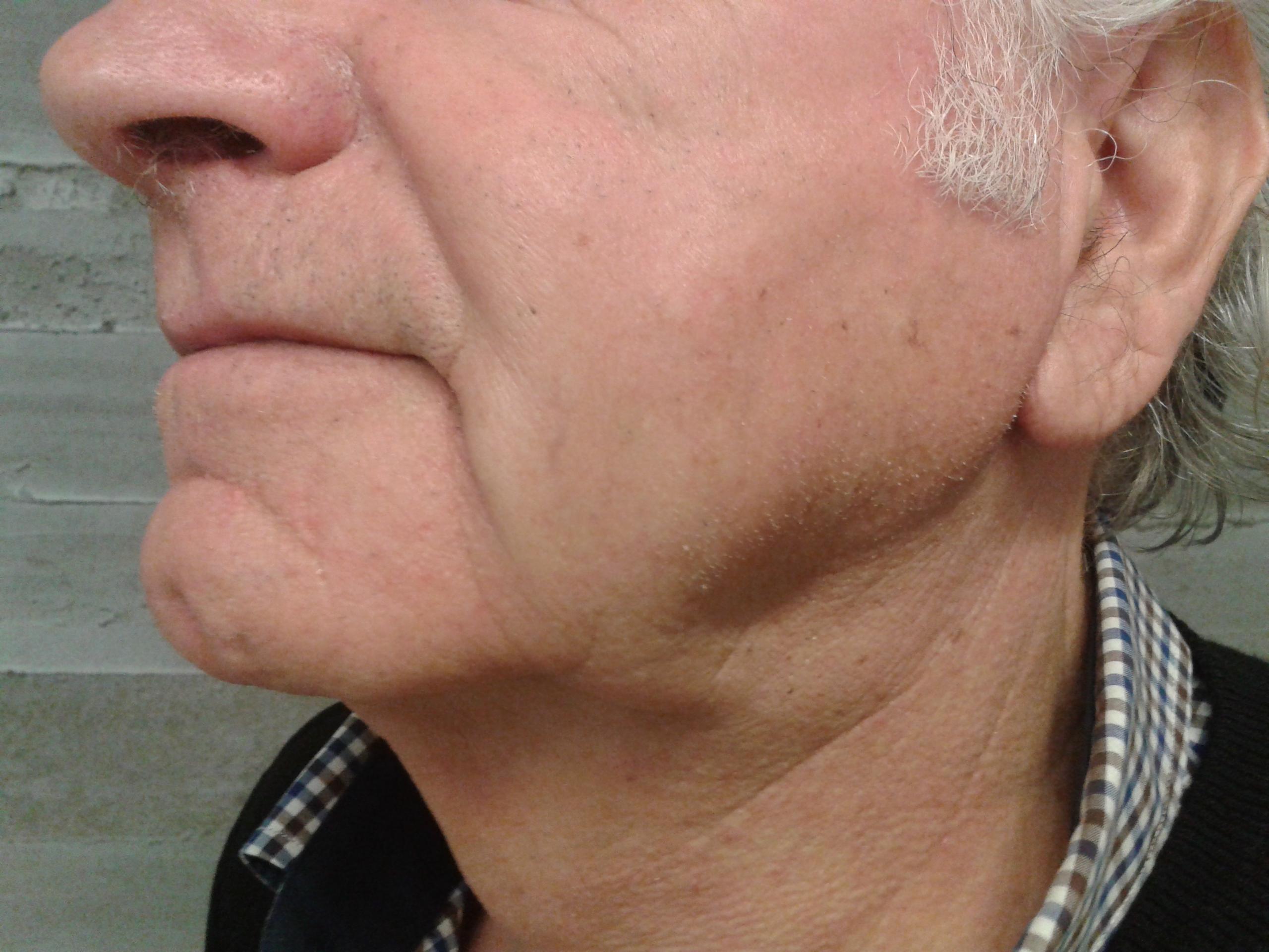 neckmeta