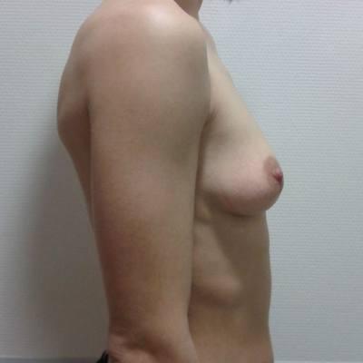 αυξητική στήθους / προφίλ / πριν
