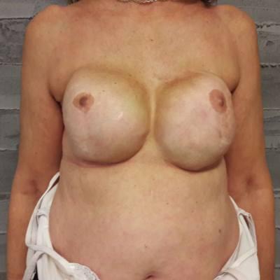 αποκατάσταση μαστού / πριν - Θεσσαλονίκη