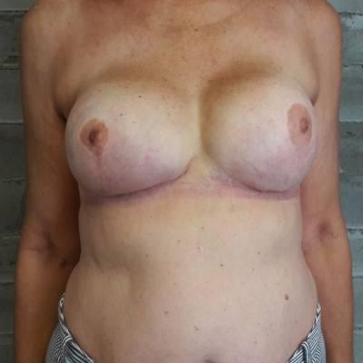 αποκατάσταση μαστού / μετά