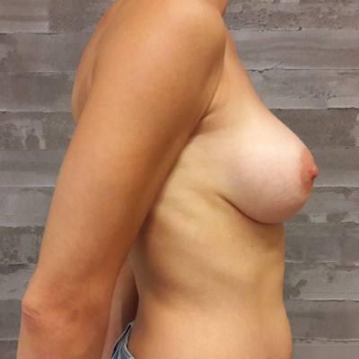 αυξητική στήθους / προφίλ / μετά