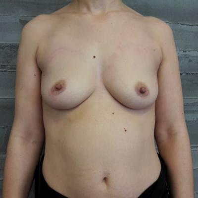 αυξητική στήθους / πριν
