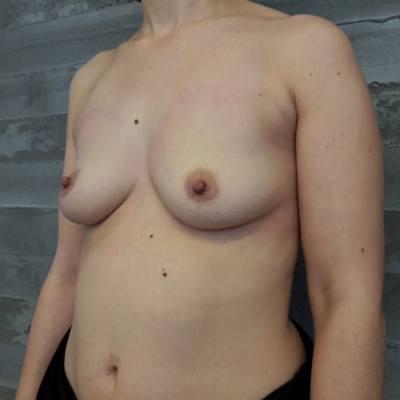 αυξητική στήθους / πλάγια / πριν