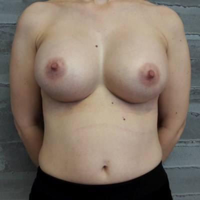 αυξητική στήθους / μετά