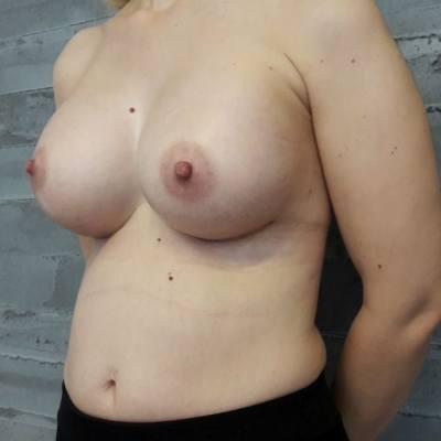 αυξητική στήθους / πλάγια / μετά