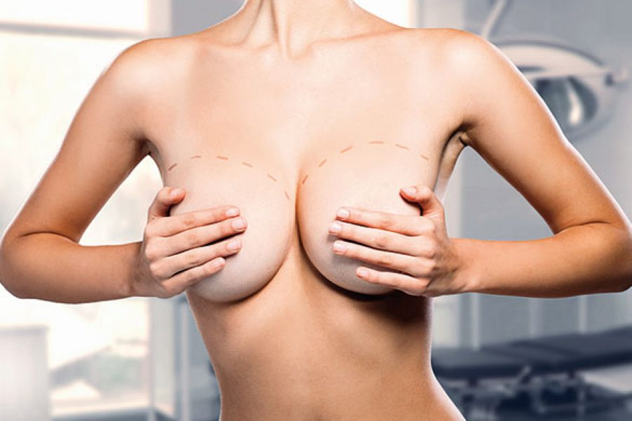 Breast- Lift