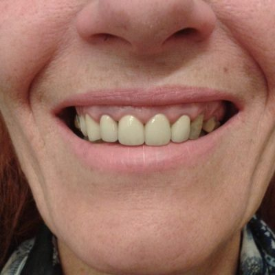 ουλώδες χαμόγελο/ πριν