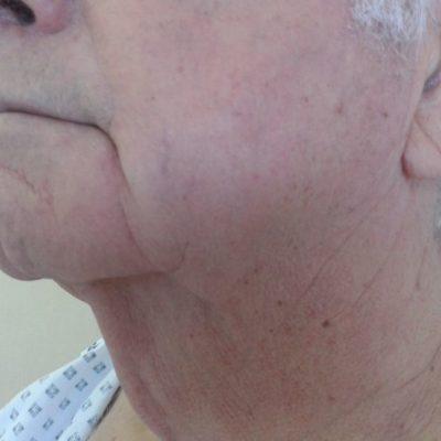 ανόρθωση λαιμού/ πριν