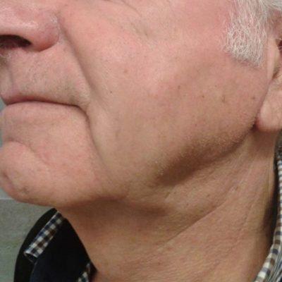 ανόρθωση λαιμού/ μετά