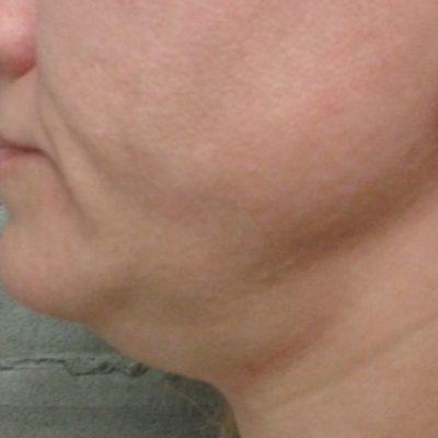 νήματα λαιμού/ πριν