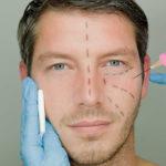 υαλουρονικό οξύ για άνδρες - fillers