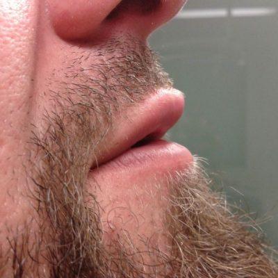 υαλουρονικό οξύ - χείλη/ μετά