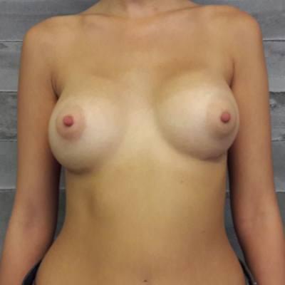 Ασυμμετρία στήθους Σέρρες